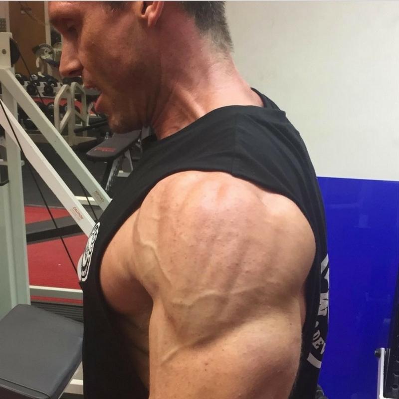 Nick Daniels Shoulders